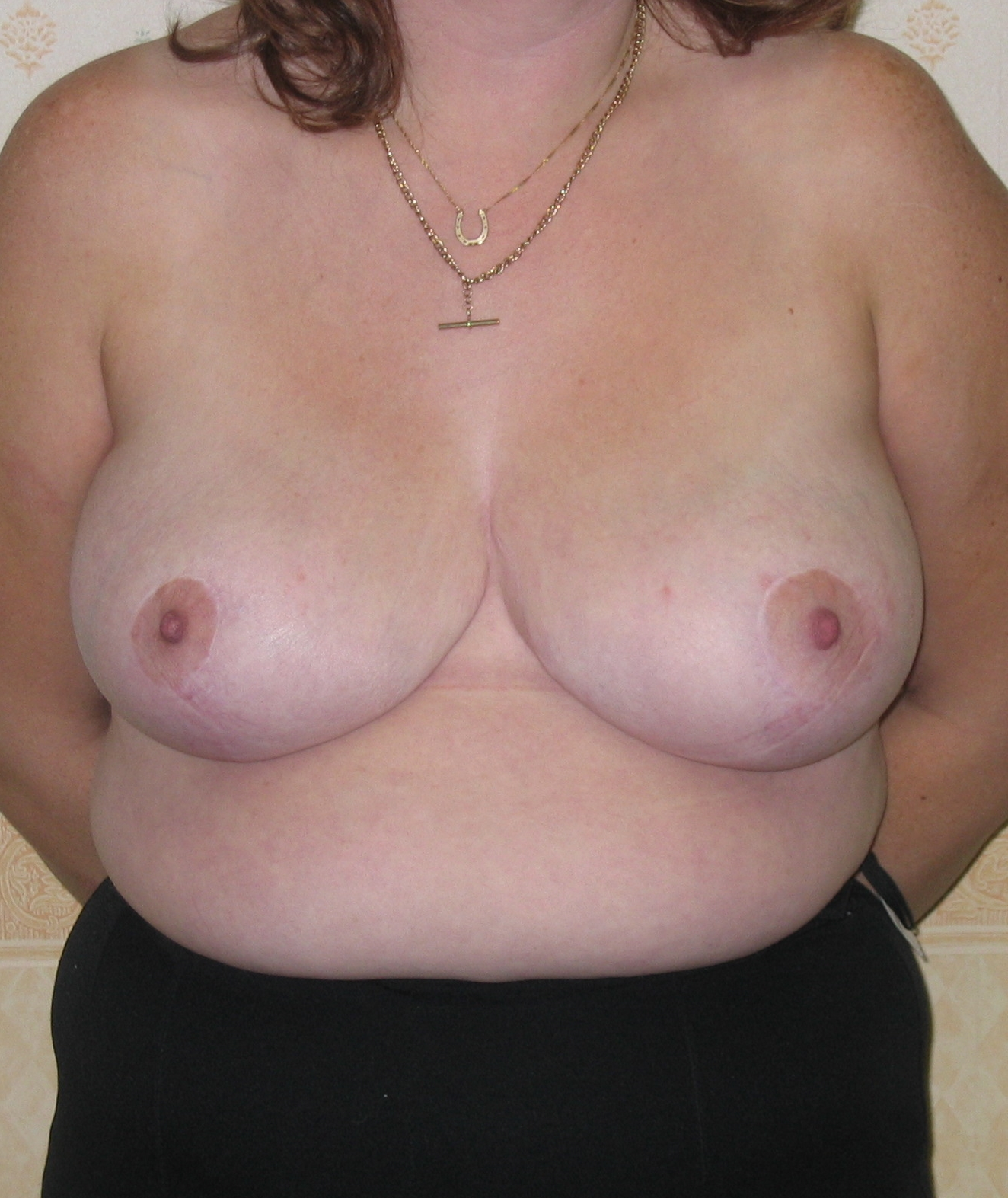 post op breast reduction
