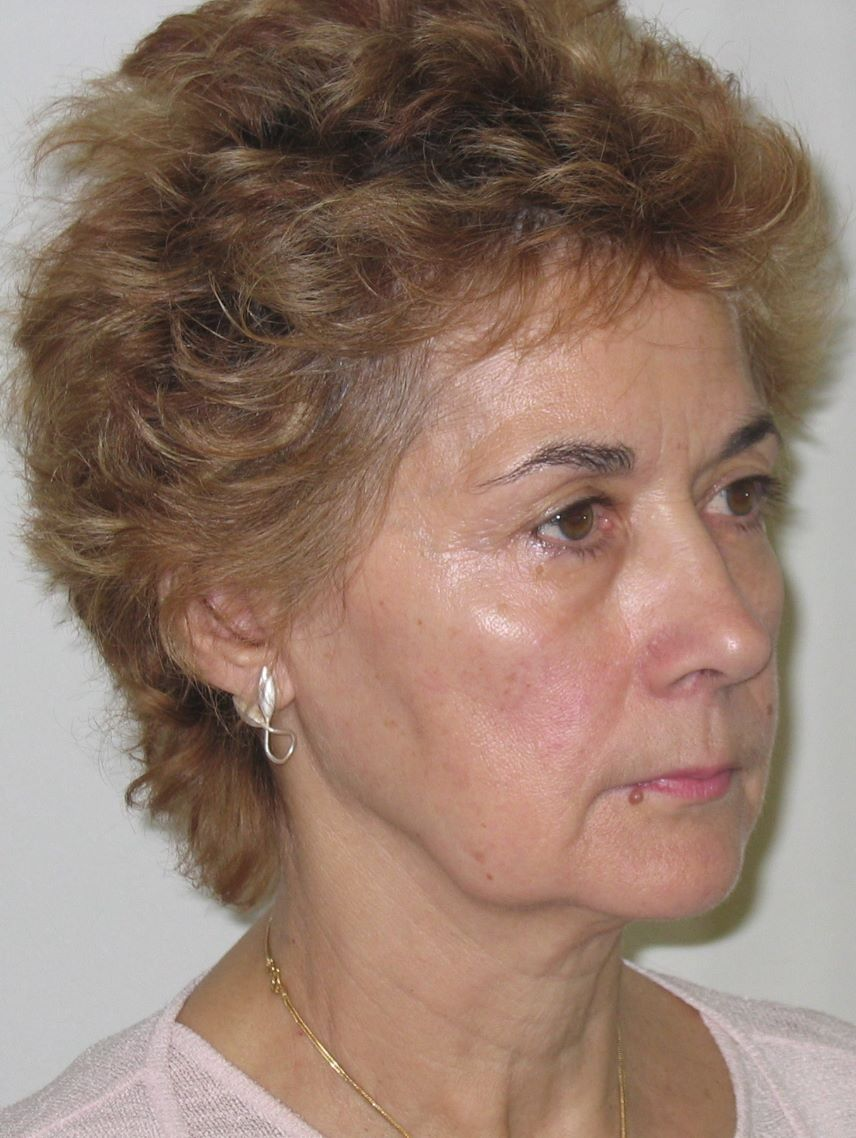 preop surgery facelift