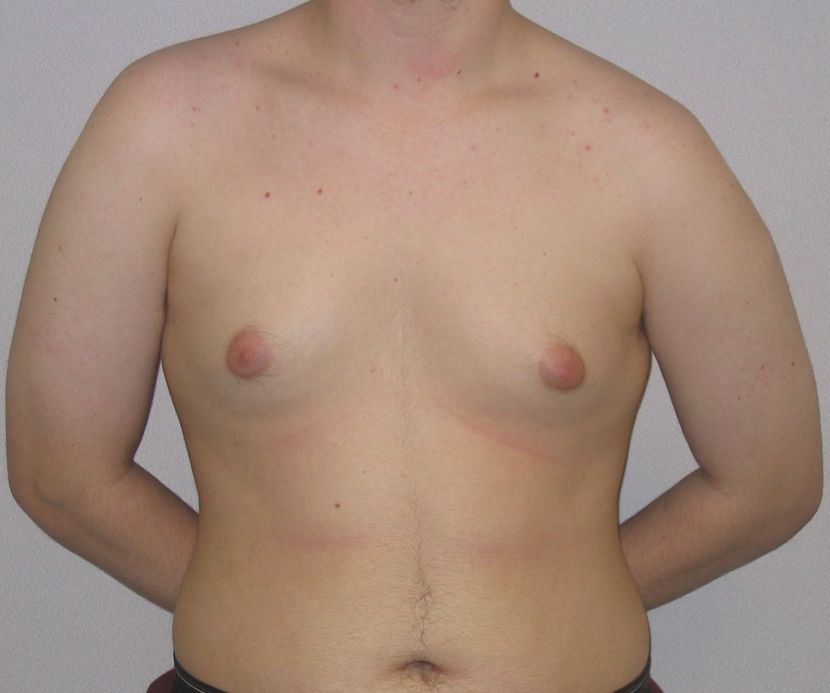 pre op male breast reduction pics
